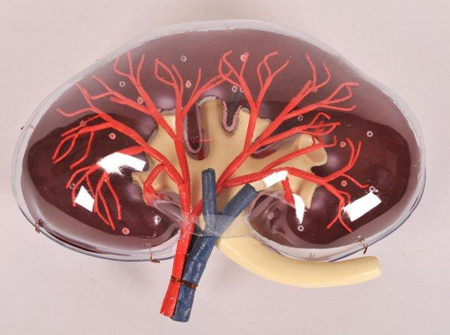 Dapsone urticarial vasculitis