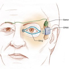 Diagram Of Artificial Eye Wiring For Tail Lights Muscles Restore Ability To Blink Save Eyesight