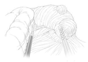 Cirugía del intestino delgado y peritoneo