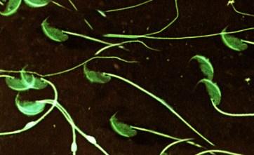 Espermatozoides de ratón moruno