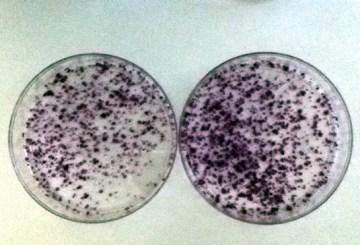 Algunas proteínas de HCV