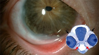 Ojo de embrión de pez cebra y ojo humano en estudio © Gabinete de Comunicación