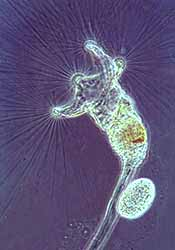 rotifer diagram labeled nursing workflow examples introduction to the rotifera living collotheca