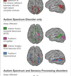 kids with autism sensory processing disorders show brain wiring differences [ 1000 x 2070 Pixel ]