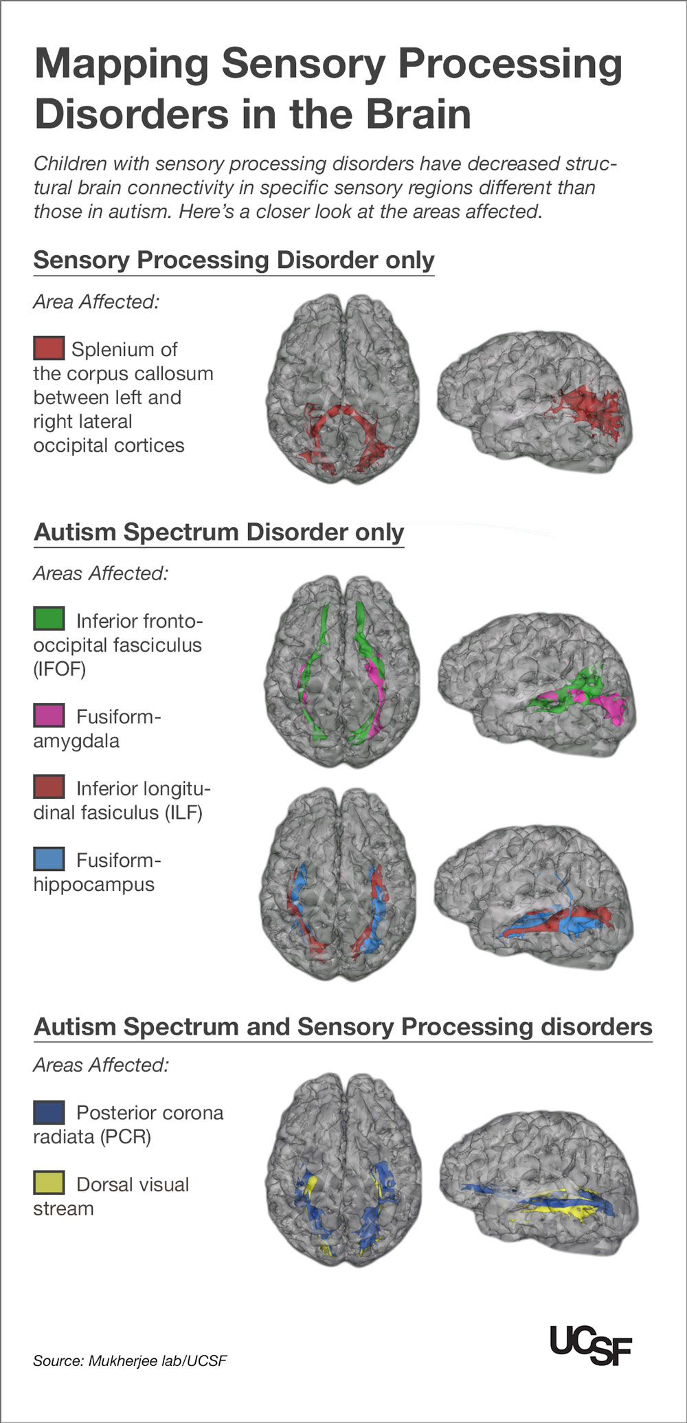 hight resolution of kids with autism sensory processing disorders show brain wiring differences