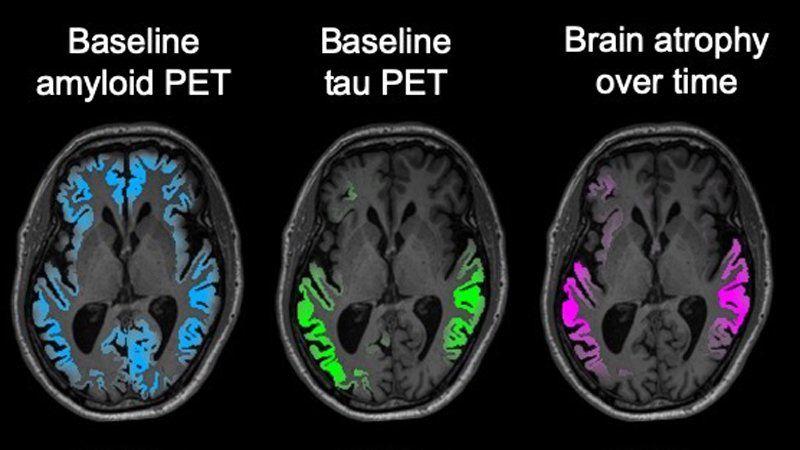 Brain MRI scans