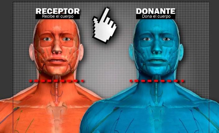 transplant of Head