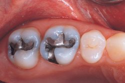 """Résultat de recherche d'images pour """"amalgame dentaire"""""""