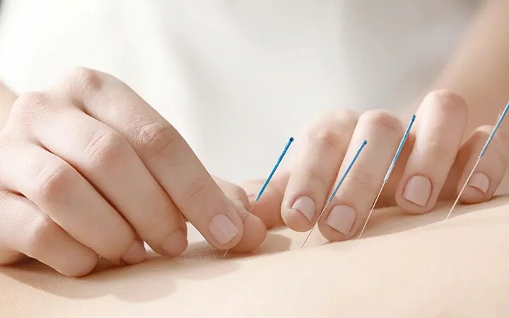 how acupuncture can help