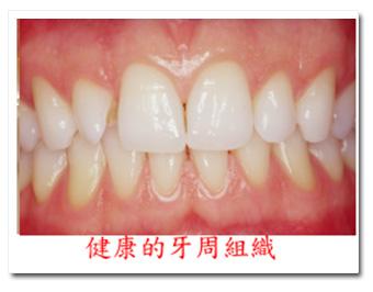牙周病 | [組圖+影片] 的最新詳盡資料** (必看!!) - www.go2tutor.com