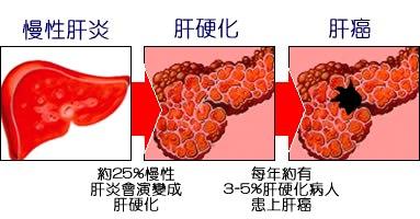 腹水,黃疸,下肢水腫 已是肝硬化晚期 - 肝硬化 , 水腫 , 黃疸 , 腹水 , 晚期