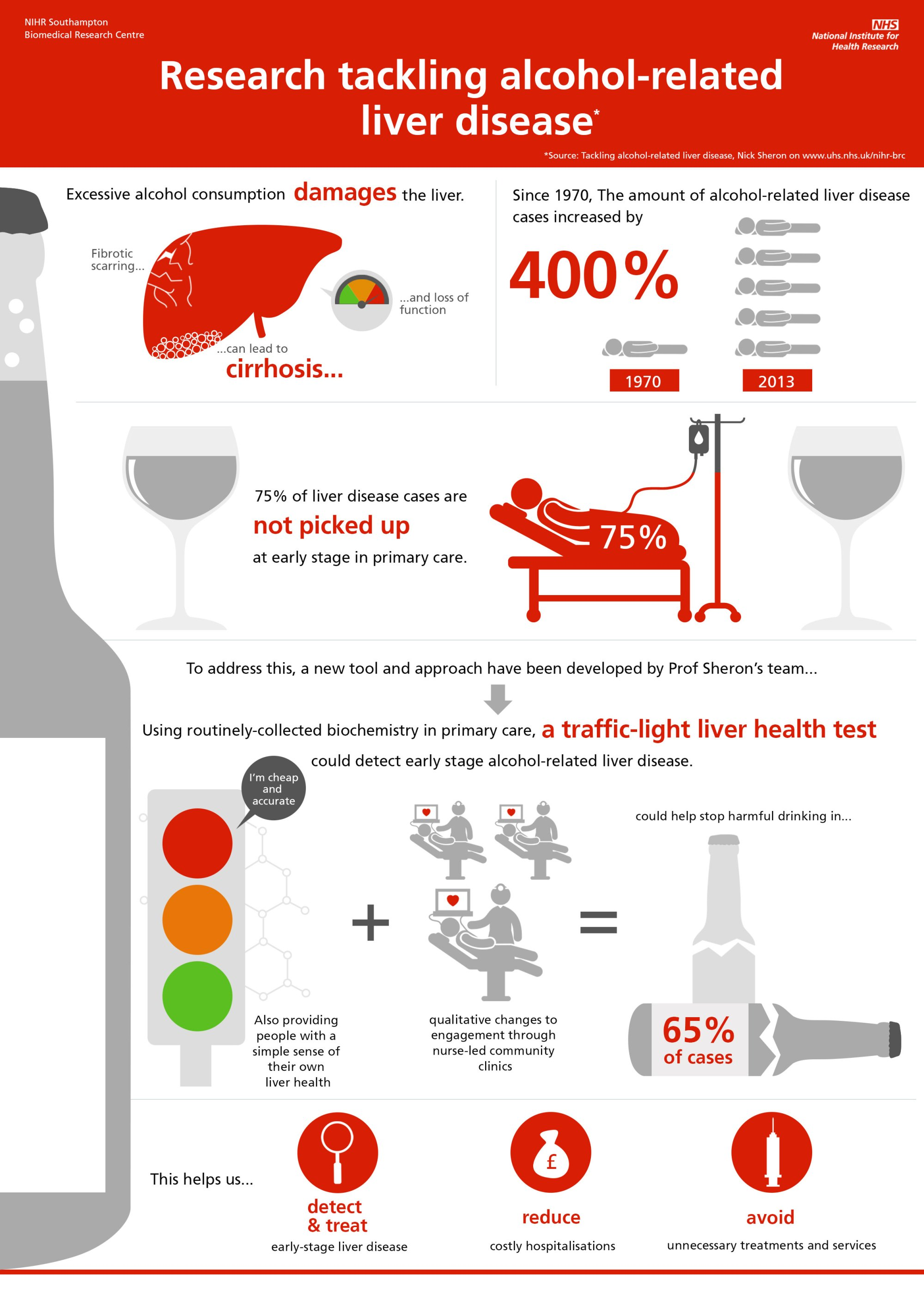 hight resolution of alcoholic liver disease infographic