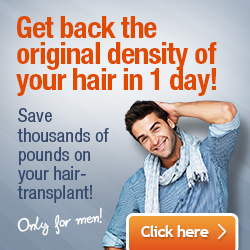 Hair transplant UK cost