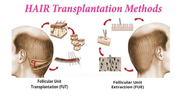 Hair transplant methods: FUT vs FUE