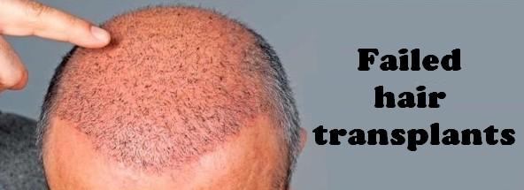 Failed hair transplants