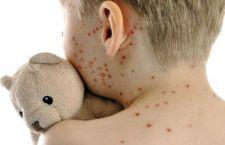 Morbillo: non vaccinato, muore contagiato dai fratelli