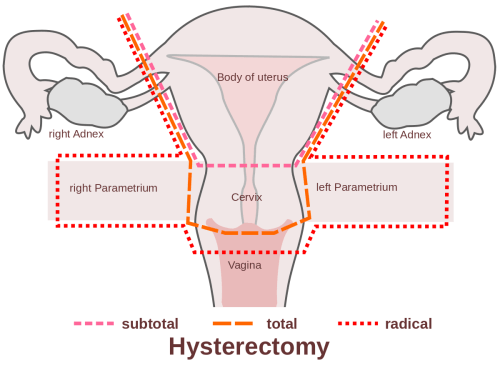 small resolution of fibroids common tumors along the uterine wall are typically benign and develop in