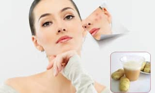 home-remedies-to-get-rid-of-acne-scars