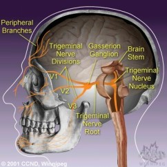 Trigeminal Nerve Diagram Bmw E46 2001 Radio Wiring Your Complete Guide To Neuralgia A M Kaufmann Of The System