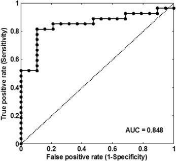Ultrasound-Based Carotid Elastography for Detection of