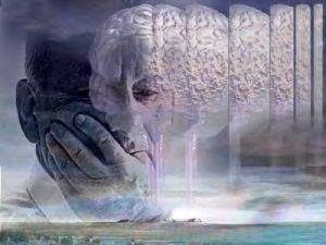 Alzheimer21