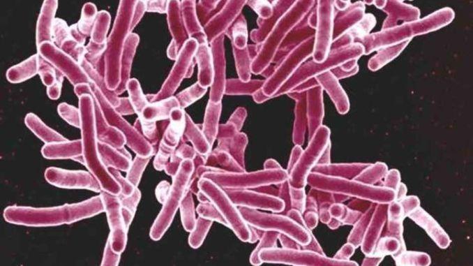 Casi Tbc a Spoleto. M5S presenta interrogazione parlamentare urgente