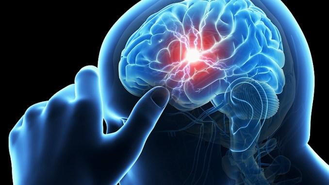 Ictus cerebrale terapia, trombectomia meccanica su 78enne a Terni