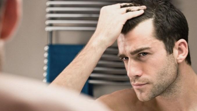 Istituto Helvetico Sanders Perugia quando preoccupa la caduta dei capelli 7b1123018897