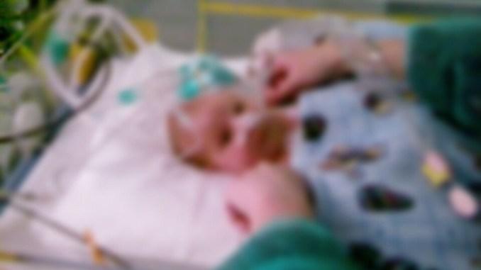Covid no ferma chirurgia, salvata neonata con grave difetto addominale, onfalocele