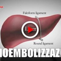 Terapia minivasiva cura tumore fegato avanzato con radioembolizzazione