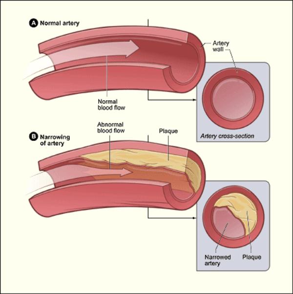 arteries blood flow