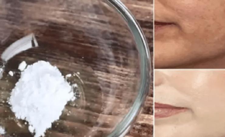 Clara de ovo e pó Royal: máscara facial para uma pele jovem e sem manchas