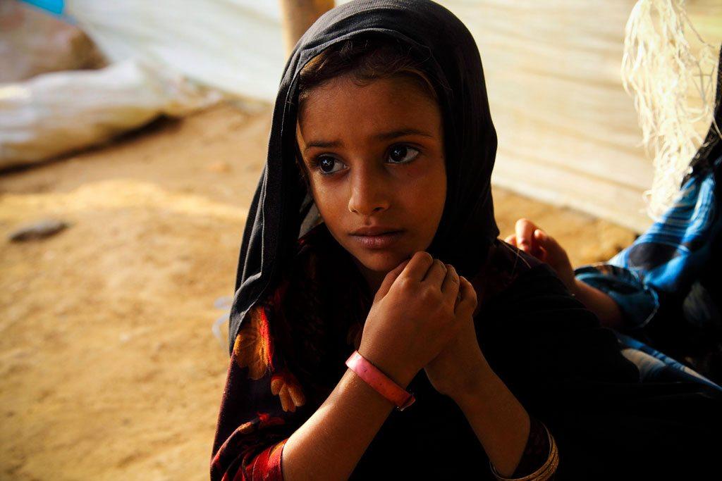 طفلة يمنية عمرها 5 سنوات، مصابة بسوء التغذية في مزرق باليمن. Photo: UNHCR/Hugh Macleod