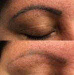 Eyebrows Tattoo Laser Tattoo Removal by Underground Tattoos Watford