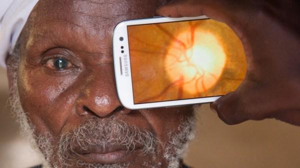 Peek es una App que brinda salud oftalmológica a las personas de bajos recursos en lugares apartados