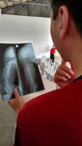 Dr. Jonathan Sembrano, an orthopedic spine surgeon at the University of Minnesota, looked at an X-ray and determined the man's shoulder was broken.