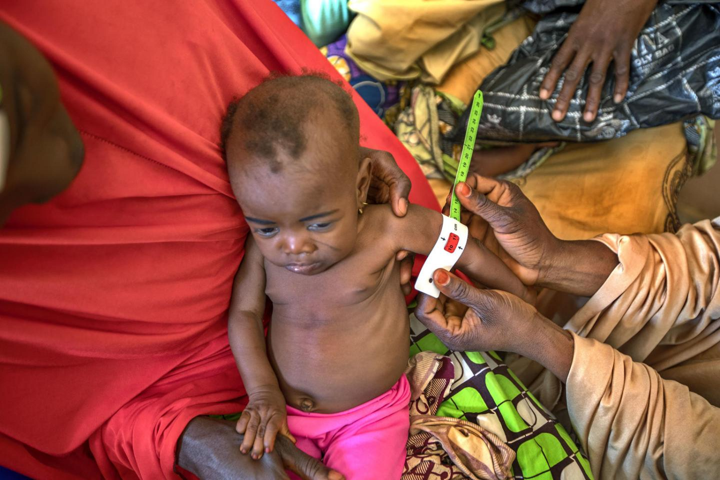 2018 Global Nutrition Report reveals malnutrition is ...