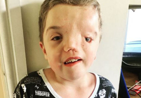 Instagram Remove Picture Of Boy Due To His Disfigurement Our Altered Life 5