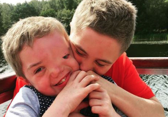Instagram Remove Picture Of Boy Due To His Disfigurement Our Altered Life 6