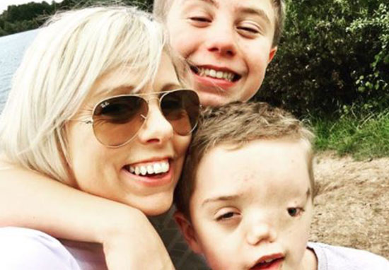 Instagram Remove Picture Of Boy Due To His Disfigurement Our Altered Life 7