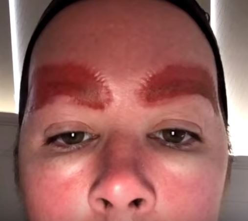 Woman Left With Horrific Infection After Getting Eyebrows ...
