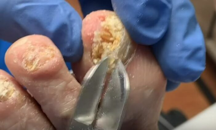 Horrifying Video Shows What Happens When You Leave Fungal ...