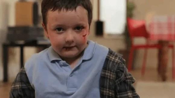 Bambino picchiato