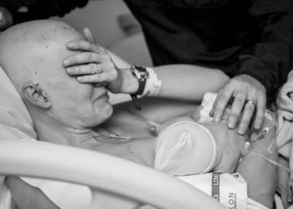 mamma cancro al seno