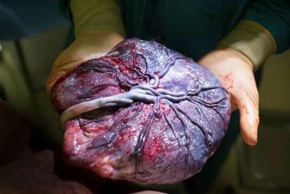 placenta usata per la vista
