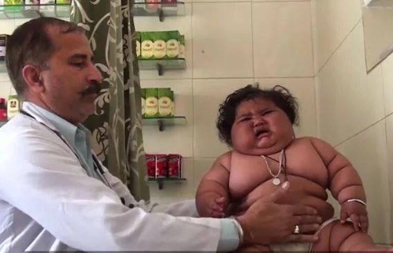 neonata obesa