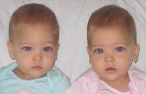 gemelle più belle del mondo