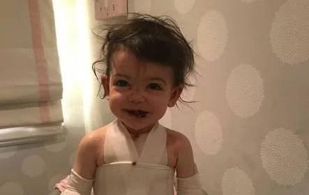 bambina con la pelle molto fragile
