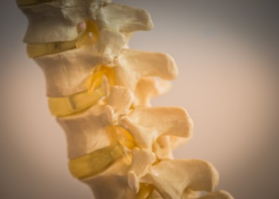 Lower back pain & Narrowed discs