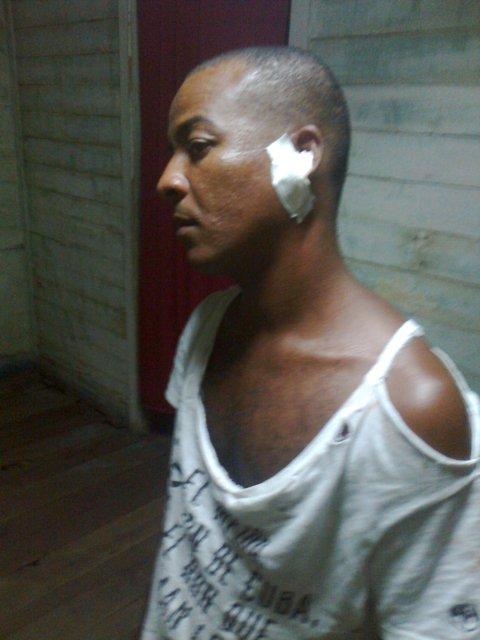 Roilán Álvarez Rensoler agredido por Delegado Poder Popular 9 de enero 2014